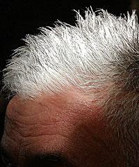 Receding hair line
